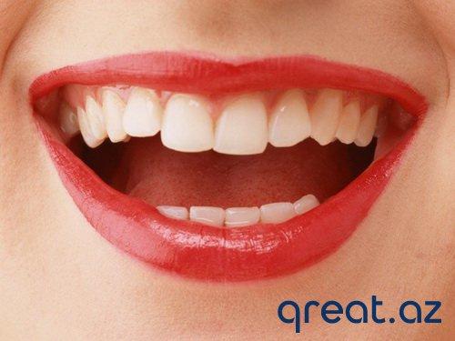 Necə dişlərdə sarı ərpi təmizləmək olar?