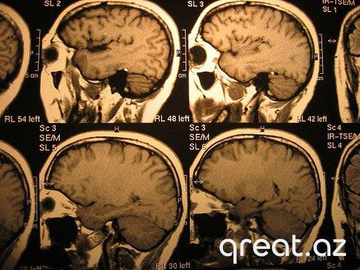 Beyində İnsult nədir?