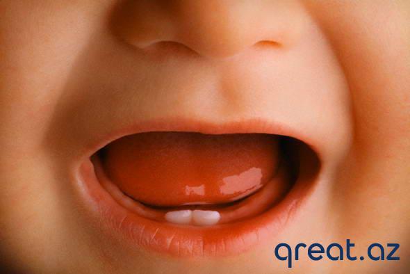 Balaca uşaqlarda dişlərə qulluq etmək?