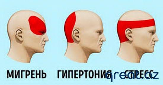 Necə baş ağrısından qurtulmaq